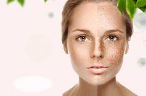 collagena lumiskin iperpigmentazione