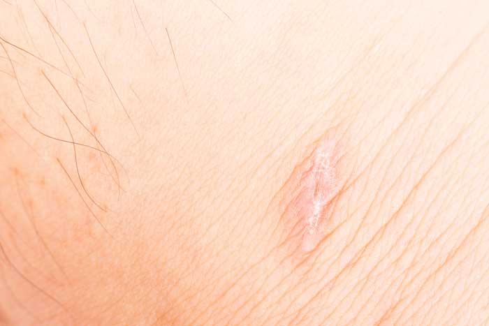 Dermopillina crema per cicatrici
